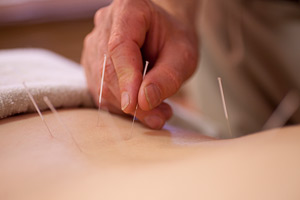 photosm_acupuncture